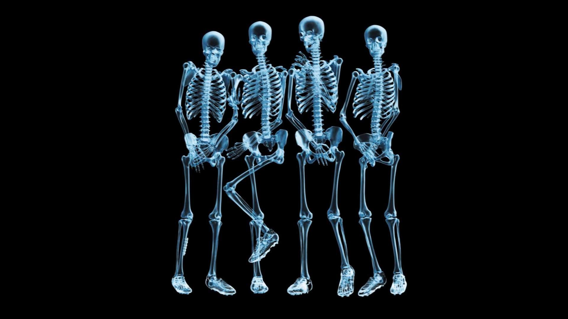 Снится Скелет