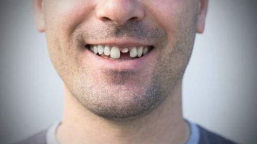 Ломаются зубы толкование сонника